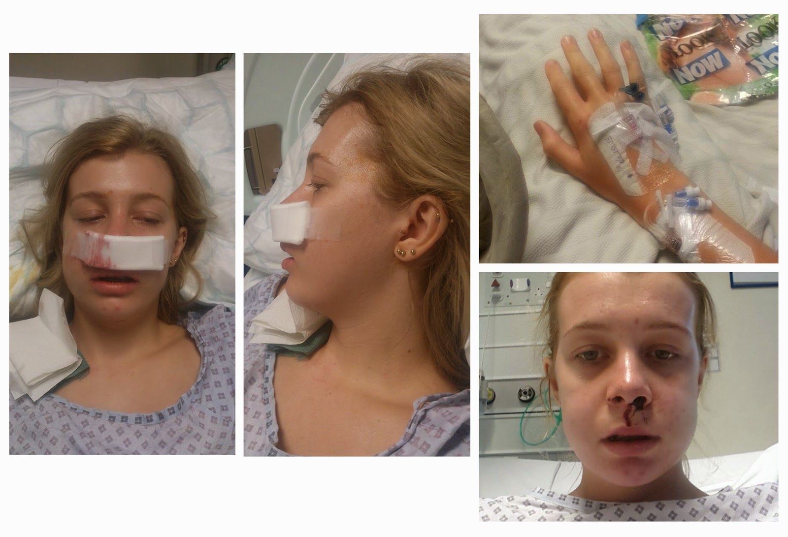 My Brace and Underbite Jaw Surgery Experience : Pre and Post Op ...