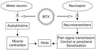 Toxina Botulínica no tratamento da dor no quadril