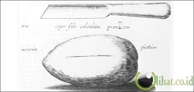 Joannes Lethaeus,Born circa 1620 - Operasi pengangkatan batu Kandung kemih seberat 4 ons
