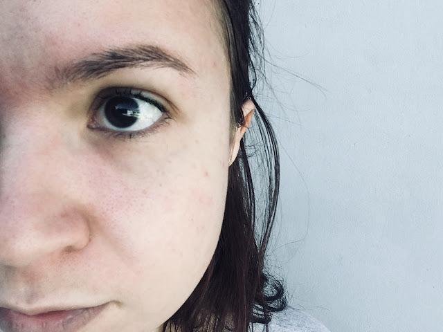resenha acneed
