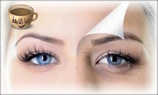 كيفية ازالة الهالات السوداء تحت العين باسرع وقت مجربة والوصفات بالصور