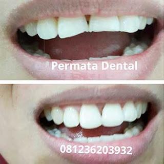 gambar foto gigi patah sebelum dan sesudah dilakukan veneer