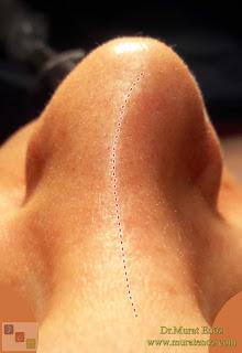 Eğri Burun Deformitesi - Yamuk Burun - Kaudal Septum Deviasyonu - Travmatik Burun Deformitesi