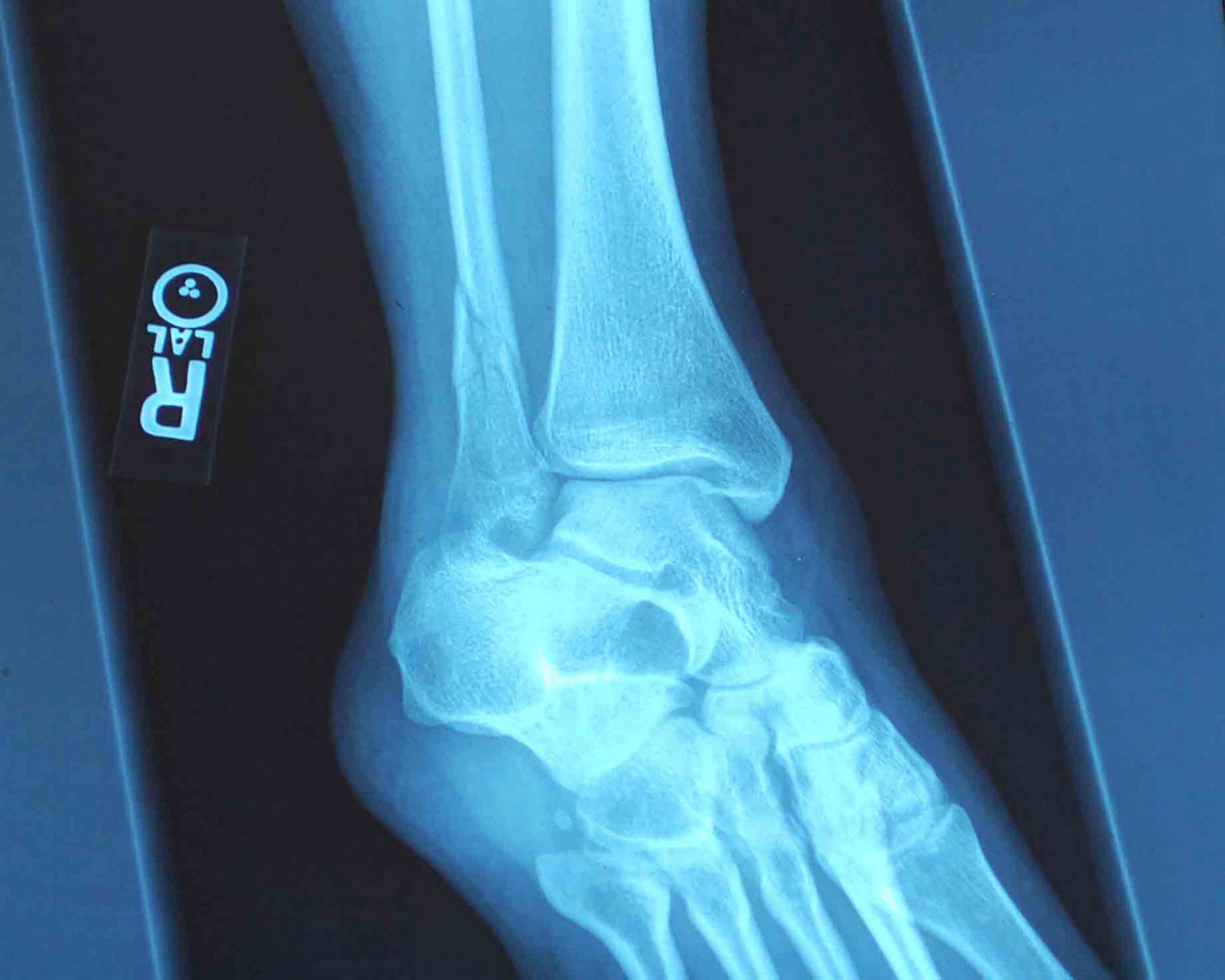 Hermitgirl of the Mountains: Broken Ankle X-Rays: Pre-Op