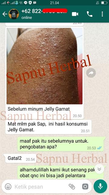Cara Mengobati Dermatitis Atopik Secara Alami Terbukti Ampuh ~ TESTIMONI QNC JELLY GAMAT