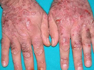 Apa Penyebab Jika Kulit Tangan Bintik2 Kecil Lalu Gatal