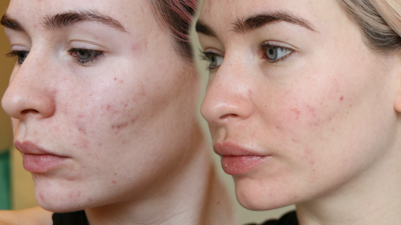 ROACCUTANE MONTH 3 - Side Effects + My Skin Now - Katie Snooks