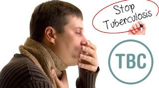 Obat Tbc Anak, Obat Tbc Tulang Belakang, Obat Tbc Di Apotik, Obat Tbc Paling Ampuh, Obat Tbc Usus,