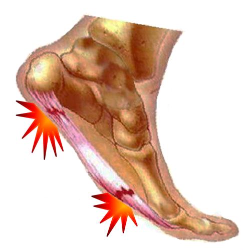 8f235a4e5 ... ao nível do pé e tornozelo. A dor plantar também está relacionada com  sobrepeso e obesidade, principalmente se este ganho de peso ocorreu  abruptamente.