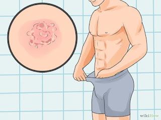 Obat Penyakit Sifilis Untuk Pria Yang Terbaik
