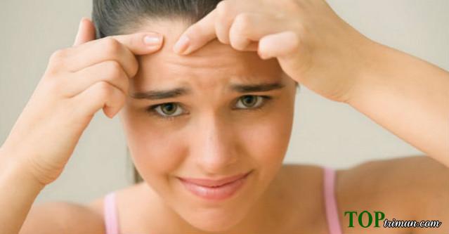5 cách điều trị mụn dễ dàng tại nhà bạn nên học ngay
