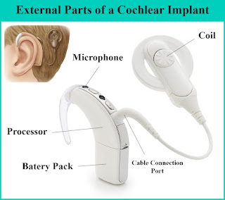cochlear-implant-external-parts