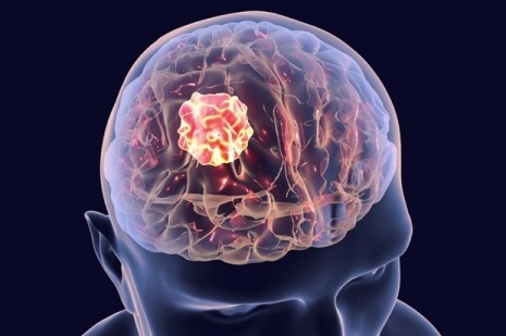 Personalized Therapy for Aggressive Brain Cancer Shows Potential