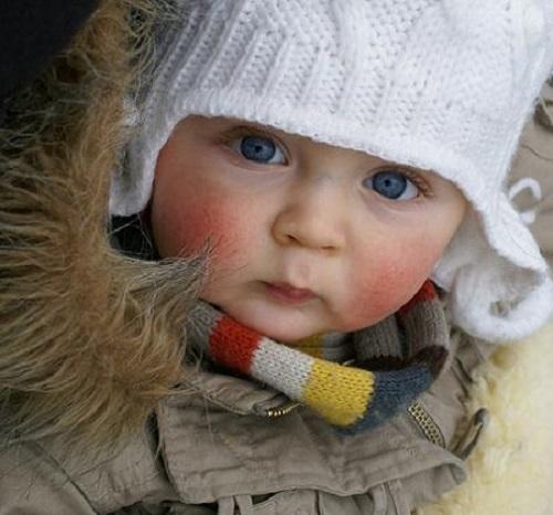 tratamiento para la rosacea en niños