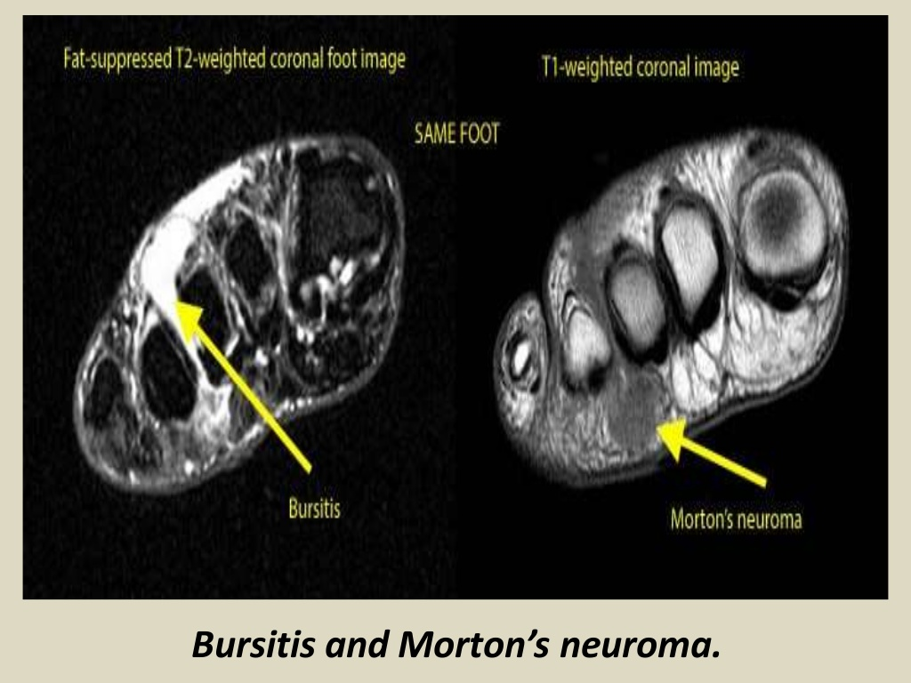 MRI Musculo-Skeletal Section: Bursa of ankle joint.