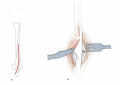 Operasi dan Reposisi Fraktur Os. Humerus dan Radius-Ulna pada Hewan (Bedah Fraktur)