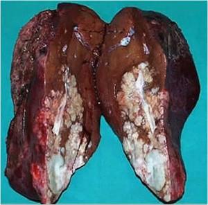 Υπηρεσία γνωριμιών ηπατίτιδας c