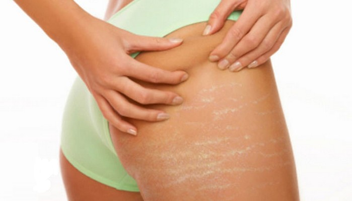 HOW DO I GET RID OF STRETCHMARKS?