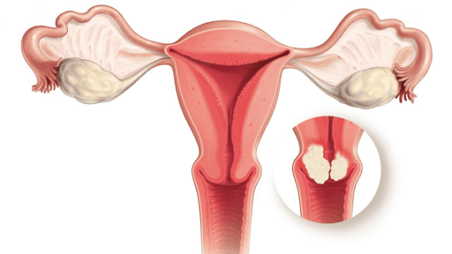 what-causes-cervical-cancer