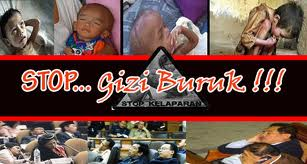 YAB: Pemerintah Aceh harus Serius Tangani Gizi Buruk