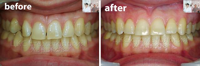 До и после ортодонтического лечения