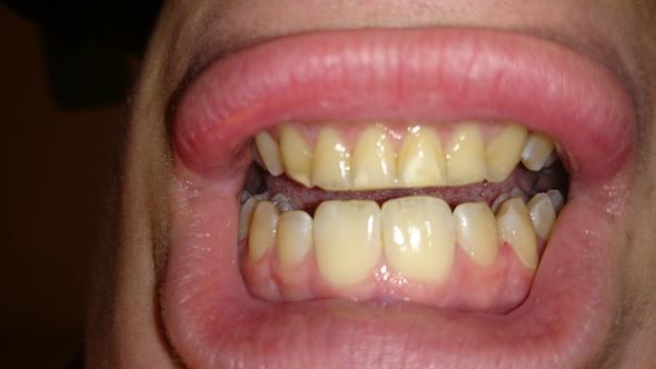 La fluorosis dental,una enfermedad que afecta a muchos barahoneros.