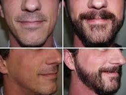 sakal ekimi fiyatları