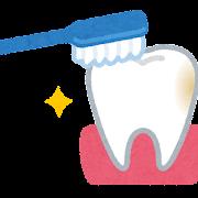 歯の磨き残しのイラスト
