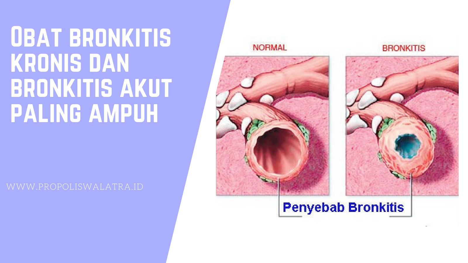 Obat Bronkitis Di Apotik