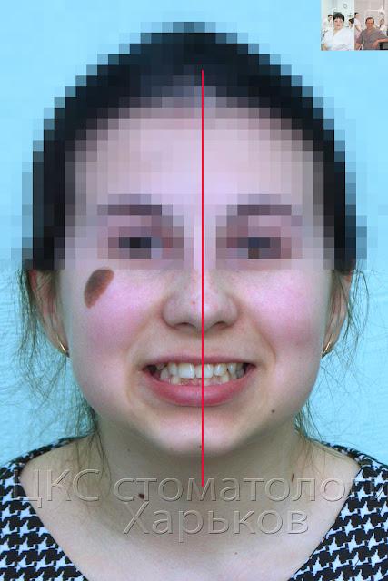 Фото улыбки пациента до лечения брекетами