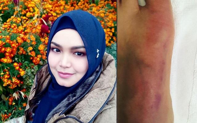 Datuk Siti Nurhaliza Jatuh Di Bilik Air Hotel