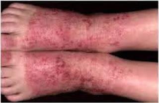 Obat gatal eksim pada kaki