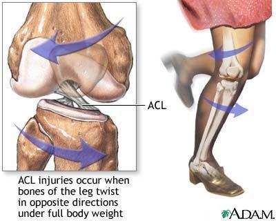 rawatan ligamen ACL putus tanpa pembedahan