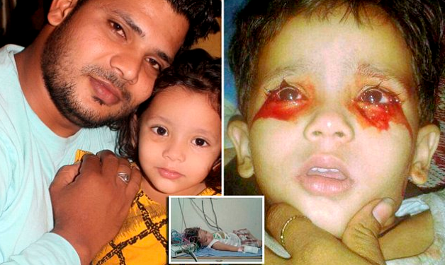 3 year old indian girl weeps tears blood