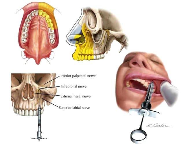 Anestesia Infraorbitaria