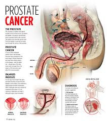 Prostate cancer survival rate by age