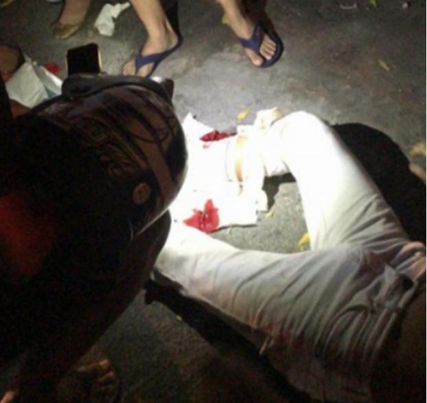 Em Delmiro Gouveia, duas pessoas ficam feridas após colisão entre moto e carro