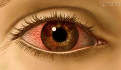 চোখ ওঠা, Ophthalmia