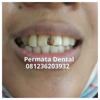 gambar gigi berlubang, keropos, rusak di bagian, depan
