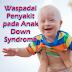 Anak Down Syndrome, Permasalahan Gangguan Kesehatan yang Perlu Diantisipasi