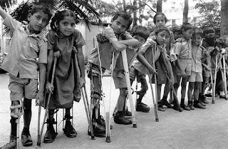 Pasien polio mengalami kelumpuhan pada ekstremitas bawah