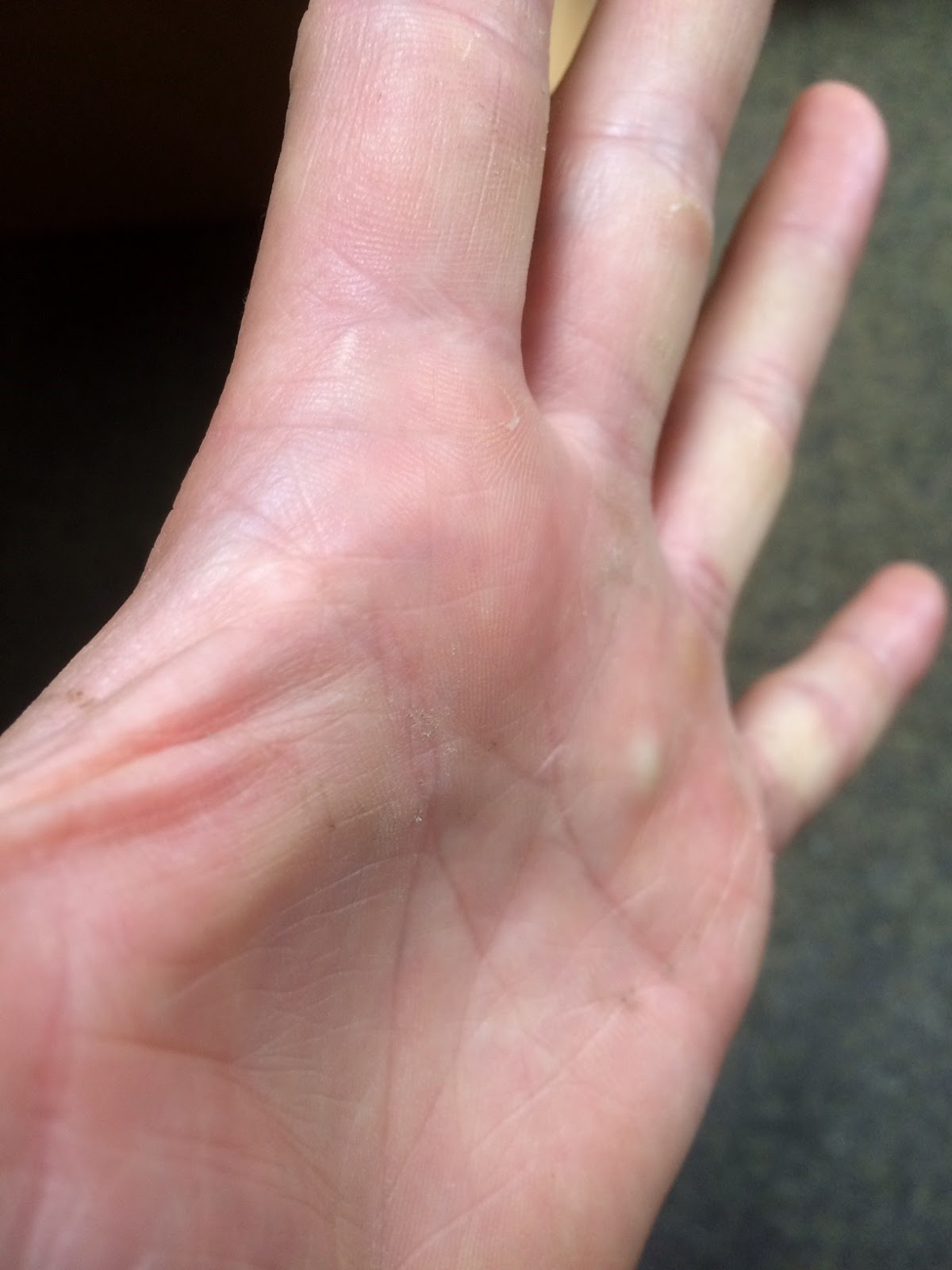 The lump in my hand