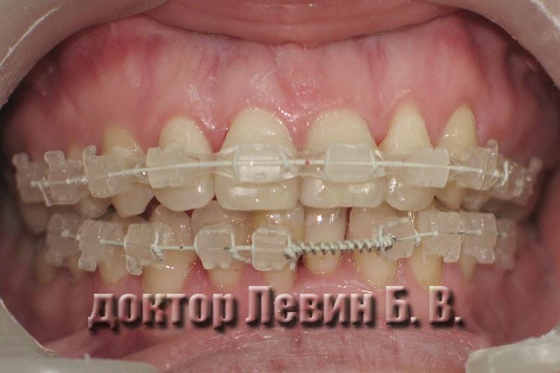Результат лечения брекетами через пять месяцев, фото.