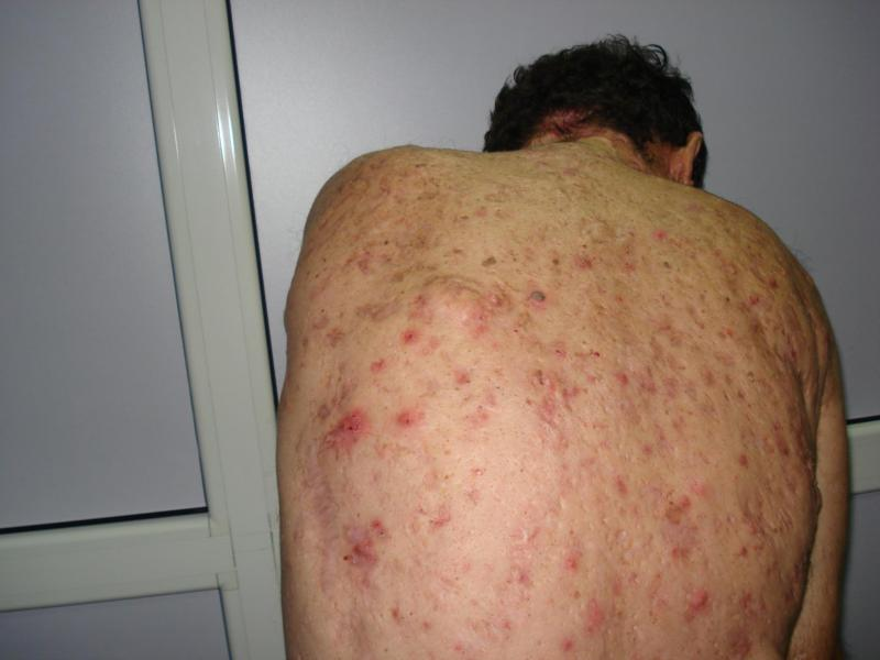 95ffd73306e9 Acne Conglobata Causes And Remedies