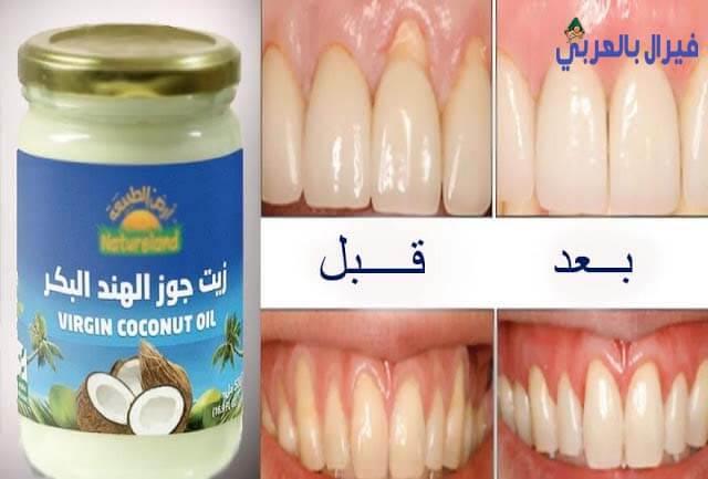 تخلص من اصفرار الأسنان فى اقل من 10 ايام