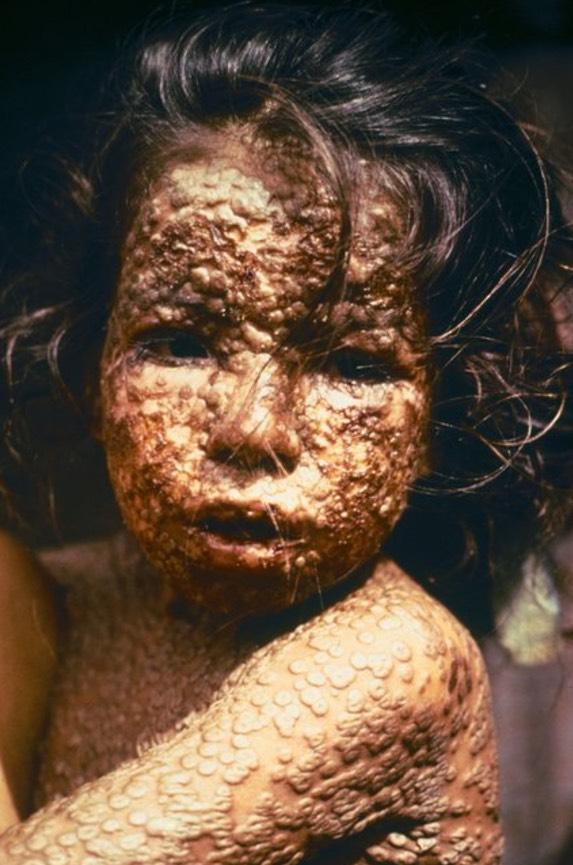 7 Penyakit Paling Berbahaya Di Atas Muka Bumi