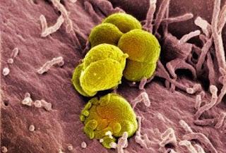 Bakteri kencing nanah atau gonore