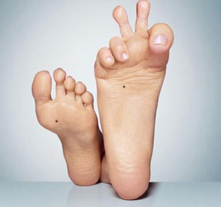 Nốt ruồi trong lòng bàn chân