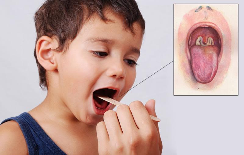 Difteri Rentan pada Anak