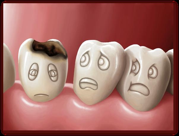 Ce este caria dentara? Care sunt tipurile de carii dentare? Care sunt cauzele cariei dentare? Care sunt simptomele cariei dentare? Cum sa prevenim cariile dentare?